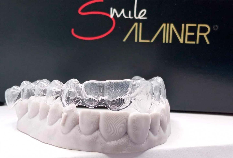 Ortodoncia invisible Smile Aligner, ¡conseguir una nueva sonrisa nunca había sido tan sencillo!